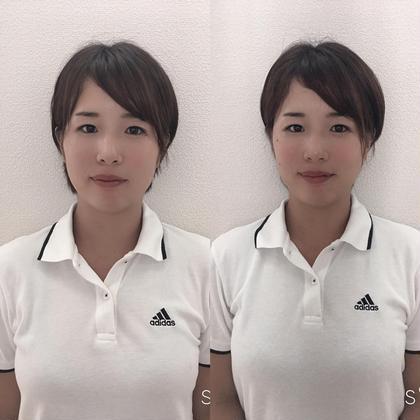 ✨ご新規様のみ✨美容鍼灸【お顔+全身調整】お顔の鍼だけでなく、身体全身のツボを使って鍼灸を行います。