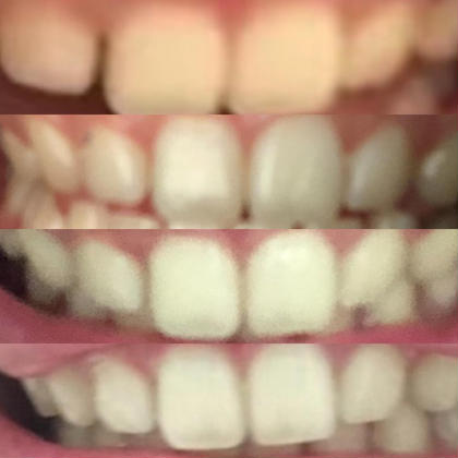 お客様がご自身で撮っていたお写真をいただきました♪ みるみる白くなるからホワイトニングが楽しくてしょうがないと 嬉しいお言葉いただけました★ 歯が白いってこんなに印象が違いますね!!