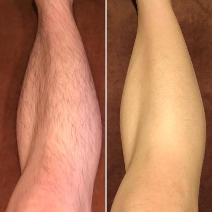 左◀️施術前 右▶️施術後1ヶ月(1ヶ月剃っていません)  1度の施術で減毛&脱毛&育毛がストップしました! 1度でもこんなに違いが出ますよ✨ サロン・ド・シャイン所属・栗原えりのフォト