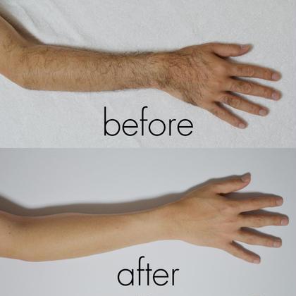 腕(肩から指先まで)1回