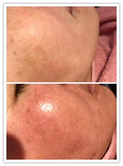 その他 ハーバルピール 施術後は毛穴マックス、シワマックスに浮き上がりますが時間と共に収縮していきお肌の再生効果でベビースキン誕生です。