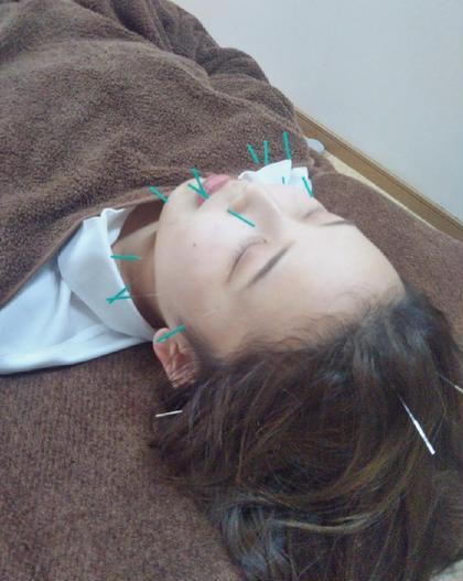 美容鍼灸で目元ぱっちり✨一度の施術でリフトアップやむくみ改善が実感できます!継続して頂くと、シミしわなどにも効果あります✨✨