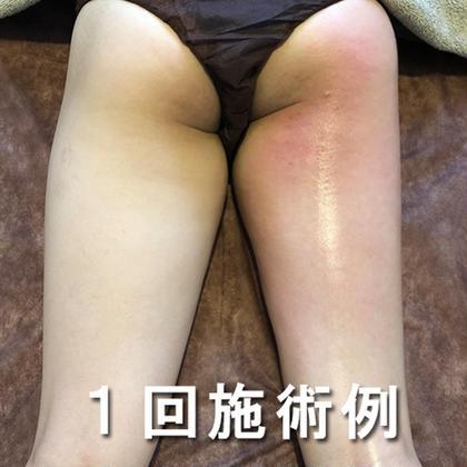 PRIVATE BEAUTY SALON &所属の黒川美津樹のエステ・リラクカタログ