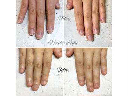 噛み爪コースの施術写真です。 短くなってしまった爪に、スカルプを載せることで自爪を保護し、伸ばすことができます。(2,,3ヶ月継続することをおすすめしています) 短い爪でお悩みの方、是非いらして下さい。 ネイルズラニの