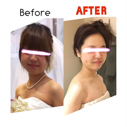🌟脂肪撃退痩身小顔フェイシャル 40分 + デコルテ・肩首筋膜リリース20分🌟