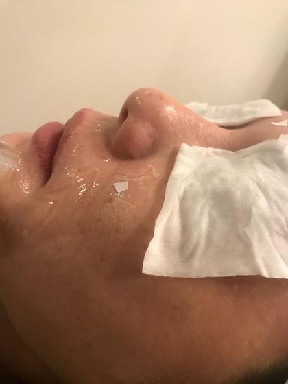 その他 シミ毛穴、そばかす、くすみ お肌全体のお悩みに対応可能です。