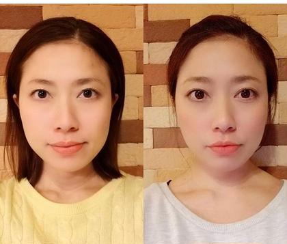 小顔矯正で歪み解消 セルフで小顔になれるコースもあります フリーランス美容師所属・辻本純江のフォト