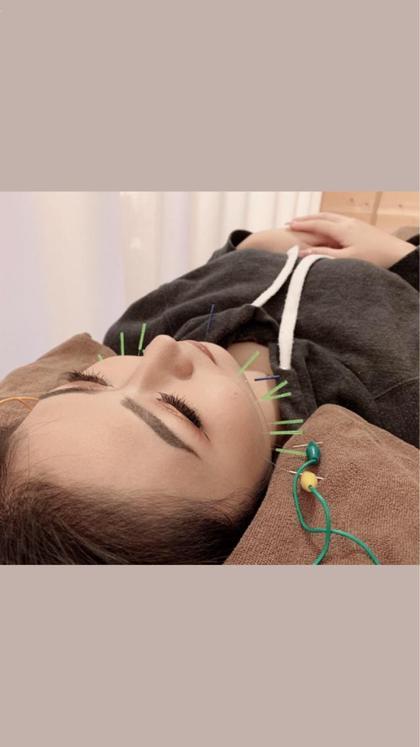 ⚡️電気を流す美容鍼(美顔鍼)⚡️ 首、肩マッサージ付き