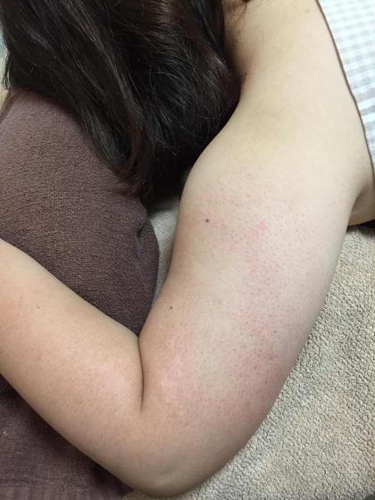腕のブツブツを改善していきます! voice  &  voice所属・汐田真樹子のフォト