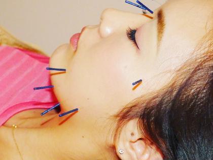 【 朝割 Beauty 鍼灸 30分 】【6:00〜9:00】