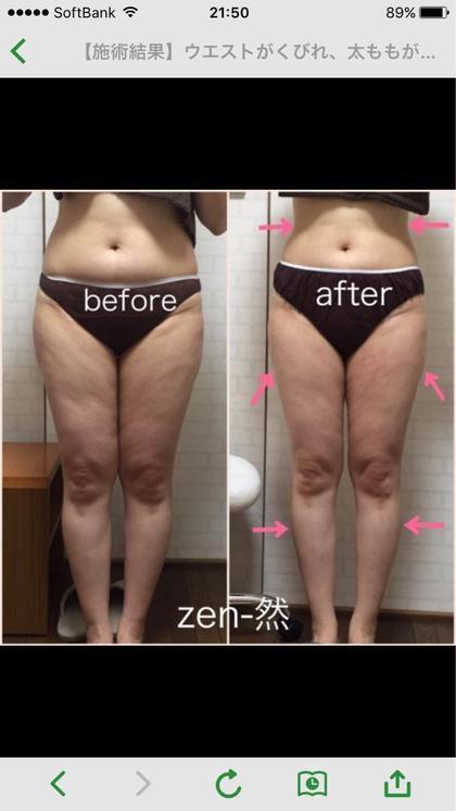 2ヶ月ダイエット zen-然所属・藤間えみのフォト