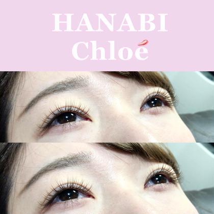【23歳以下限定】hanabi  Chloe 最高級レーザープレミアム100本❤︎