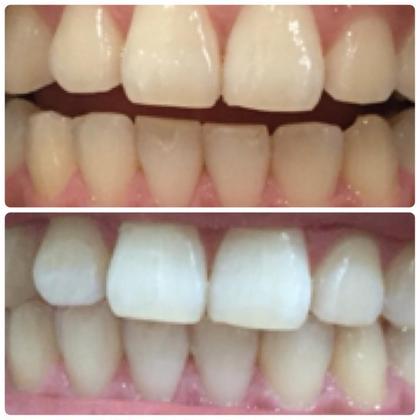 歯のセルフホワイトニング