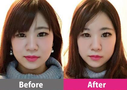 【初回限定】小顔矯正(頭蓋骨調整、鼻骨調整、リンパ&脂肪マッサージ)初回の方限定