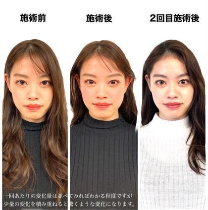 美容鍼➕パルス(電気鍼)➕小顔矯正【2回目以降】
