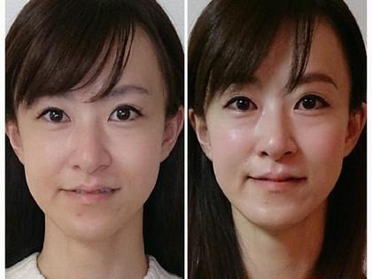 1回の施術で小顔&リフトアップ!お肌も透明感のあるつや肌に。 サロン  ロッタ所属・高品優子のフォト