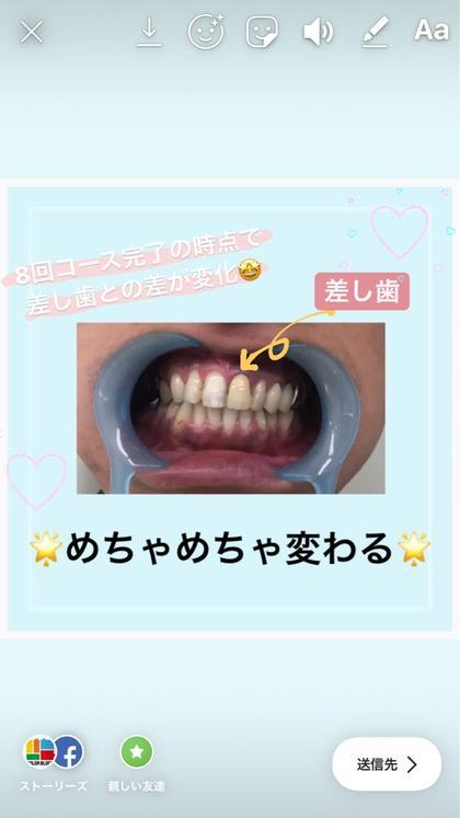 もともと全体が差し歯と同じ色味でしたが 8回通っていただきましたら差が歴然٩( 'ω' )و 今の歯に合わせて差し歯を入れ替えられるそうです★