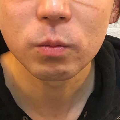 【メンズ光脱毛/ ヒゲ脱毛】毎朝の面倒なひげ剃りにサヨウナラ♪★美肌ヒト肝細胞+ビタミンC融合体濃厚パック付⭐️