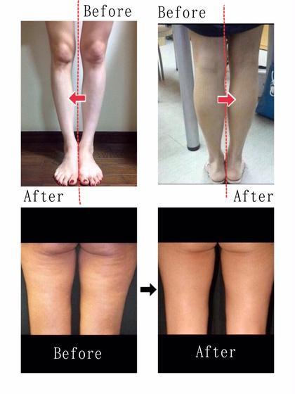 1回の施術でサイズダウンを実感❤️人気の痩身メニュー✨お正月太りしっかり解消しましょっ♬上半身or下半身から選べます❣️
