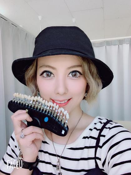 モデルのaikuさん♡芸能人モデルさん御用達のセルフホワイトニング♡一般人も歯が白い時代!