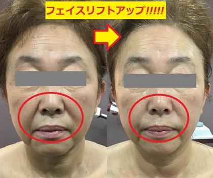 フェイスリフトアップたった1回でしっかり小顔!! 関西コレクションで大人気の美顔洗顔器使用!!!