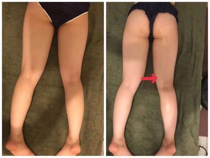 12🈷️痩身限定❣️キャビ+ヘッドスパ+大量発汗&全身むくみスッキリ+アロマリンパ120分22800→7600