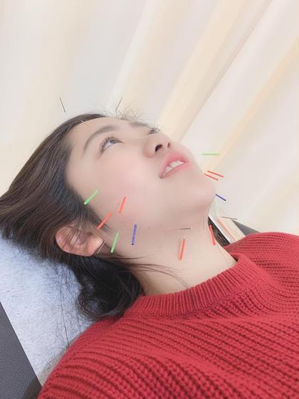 大人気💕小顔美顔鍼(美容鍼)+首の調整😚 紫外線、お肌のダメージが気になる方必見🎊
