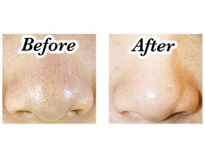 ꫛꫀꪝ✧‧˚【毛穴ふわもこ洗浄】毛穴もスッキリお掃除✨お化粧ノリもばっちり👌🏻♪毛穴の黒ずみ・つまり・開き・くすみ・ニキビ・脂性肌