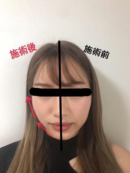 (小顔・美容矯正・リンパケア・痩身)TSUKUBA小顔所属・石塚美紅のフォト