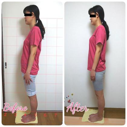 美容整骨 1回目のbeforeと2回目のafterです。 反り腰だったのが改善されて姿勢が美しくなりましたね☺️