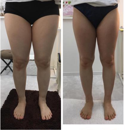 痩せる代謝アップマッサージ 半身 4ヶ月ほどの効果