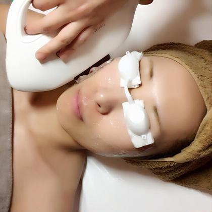 【美肌/ 光フェイシャル✨ニキビケア】マイクロダーマごっそり毛穴洗浄+LED美顔マスク+ヒト肝・ビタC誘導体パック付❤️