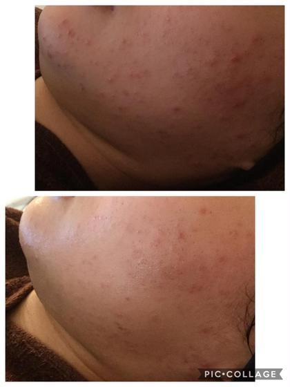 たった2カ月で劇的にニキビが減少🥰✨ クリニックでも、病院でも難しかったニキビもハーブピーリングの殺菌作用で脱ニキビ肌です🌿