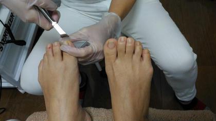 健康な自爪を育てたい、巻爪、間違った爪の切り方による痛み、硬い爪、分厚い爪…爪のトラブルは、プロにお任せください♪  爪の弱い方には、ダイヤモンドコートでツヤツヤのお爪にお仕上げします☺ ドイツ式フットケアサロン 足足(あしたす所属・高曽麻衣のスタイル
