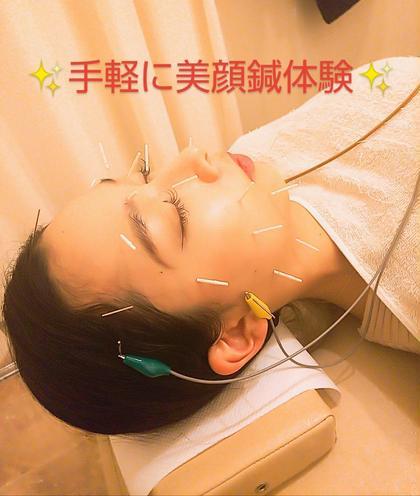 手軽にちょっと美顔鍼体験!むくみ改善!顔のみ美容鍼