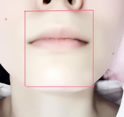口周りの範囲です(^^) ナチュラルリアンジェ所属・阿部玲子のフォト