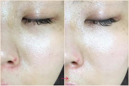くすみが取れ 鼻の毛穴の黒ずみが綺麗になっています。 小鼻の横のくすみが取れ、シワ感がなくなりました。  最先端の再生美容で使われる、貴重な幹細胞培養液が超高濃度で入っている美容液を、使用して仕上げております。 zen-然所属・藤間えみのフォト