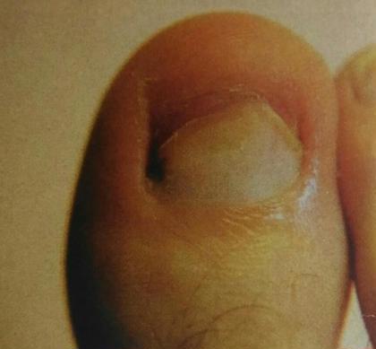 この様な状態のお爪に人工爪を形成します。 ドイツ式フットケアサロン 足足(あしたす所属・高曽麻衣のスタイル