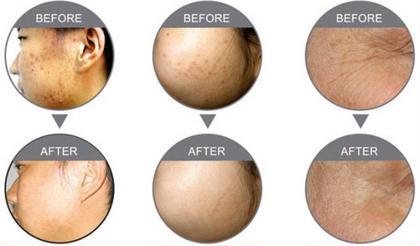 🌸期間限定特別価格🌸肌質改善✨LEDフェイシャル3回セット❤️ホームケアセット&プチヘッドマッサージ付