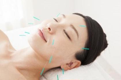 💓首肩こり鍼灸+美容鍼💓小顔&首肩こり改善