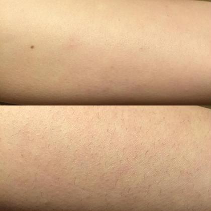 施術ビフォーアフター\(^o^)/ 古い角質もとれてお肌がツルツルに ワックス脱毛&小顔矯正サロン SUNSET所属・粟野由紀のスタイル