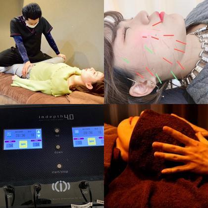最強人気ナンバー1メニュー✨3メニューバリューセット❤美顔鍼(美容鍼)+骨盤矯正+EMS