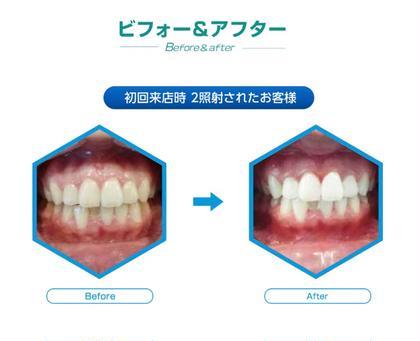 都度で通いたい方向け❗️セルフホワイトニング10分×3照射 1時間でできる歯のエステ❗️10分あたり4400円😊