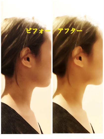 小顔美容矯正1回 施術後  お首の長さまで変わります。