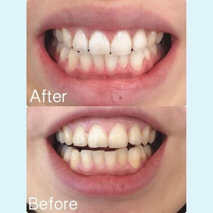 ✨モニター限定価格✨歯のホワイトニング 15min💙