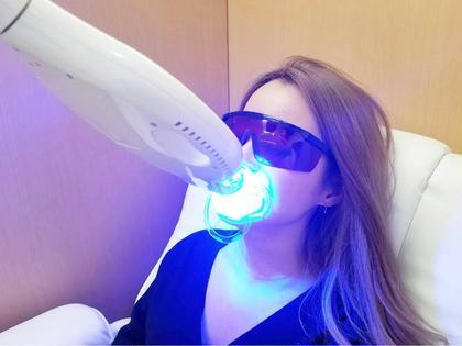 【初回限定・ナチュラルな白さ】人間本来の自然な歯の白さを目指すホワイトニング😃✨〈10分×3回コース〉