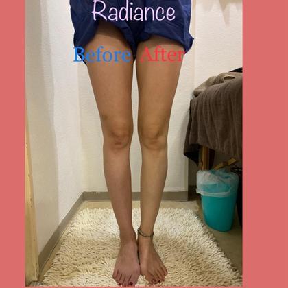 癒しません!細くします!撃退セルライト Radiance菊水所属・Radiance 菊水店のフォト