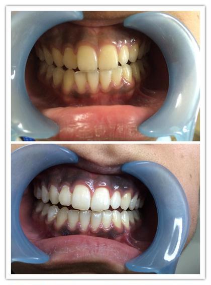 歯のセルフホワイトニング✨✨✨ 8分間を2回の施術が1セットとなります。 2回、通った結果です。 かなり白くなったと喜んで頂きました。 Miss Cleo所属・笹本美幸のフォト