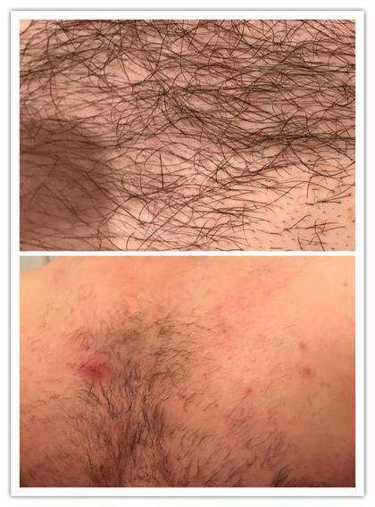 その他 メンズ脱毛 上/施術前 下/施術後 一ヶ月経過してます。  オーダーメイドでIPLの単発で早期終了可能!