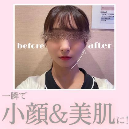 🌷OPEN記念🌷【セルフBODY+サーマルフラクショナル】SNS話題!即実感できる美肌小顔に… ¥4,400